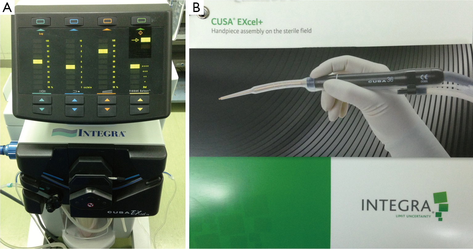 Application Of Cusa Excel Ultrasonic Aspiration System In